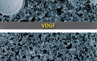 Mikrostruktur VDGF und VHGN EHWA Bindung